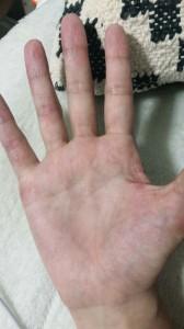 手湿疹漢方薬10日間服用後