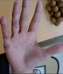 手湿疹服薬前